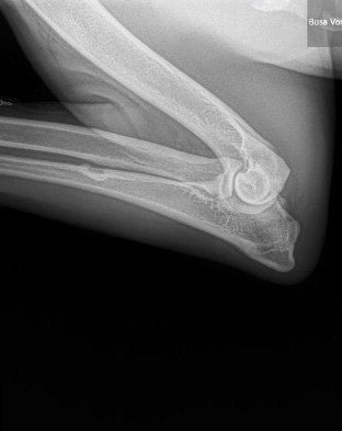 busa left lateral elbow